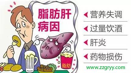 脂肪肝病因