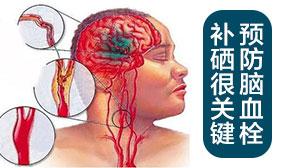预防脑血栓 补硒很关键