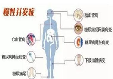 预防糖尿病并发症记住一点稳定血糖