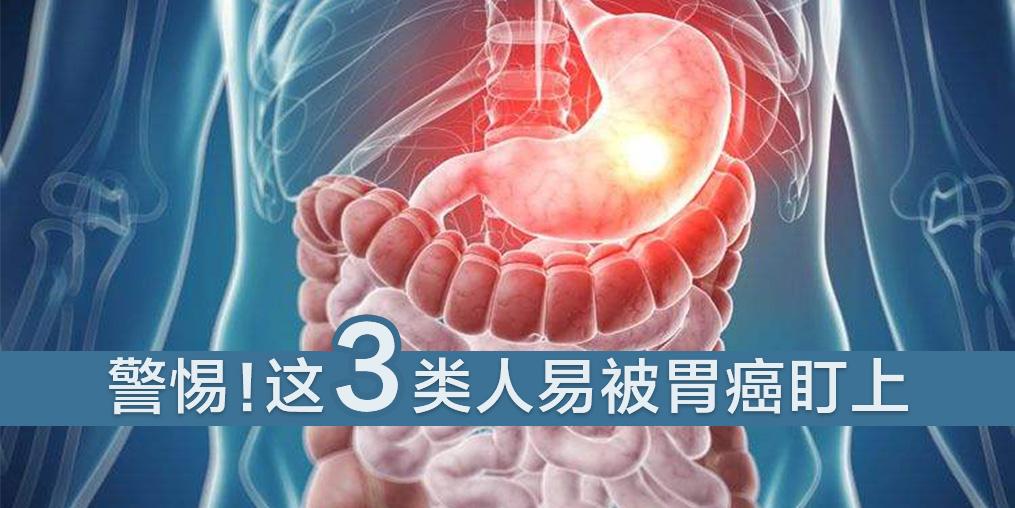 这3类人易被胃癌盯上,及时补硒是关键