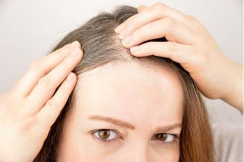 长白头发是因为缺什么?当然是缺它