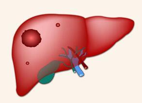 人参皂苷和肝癌放化疗之间的微妙关系