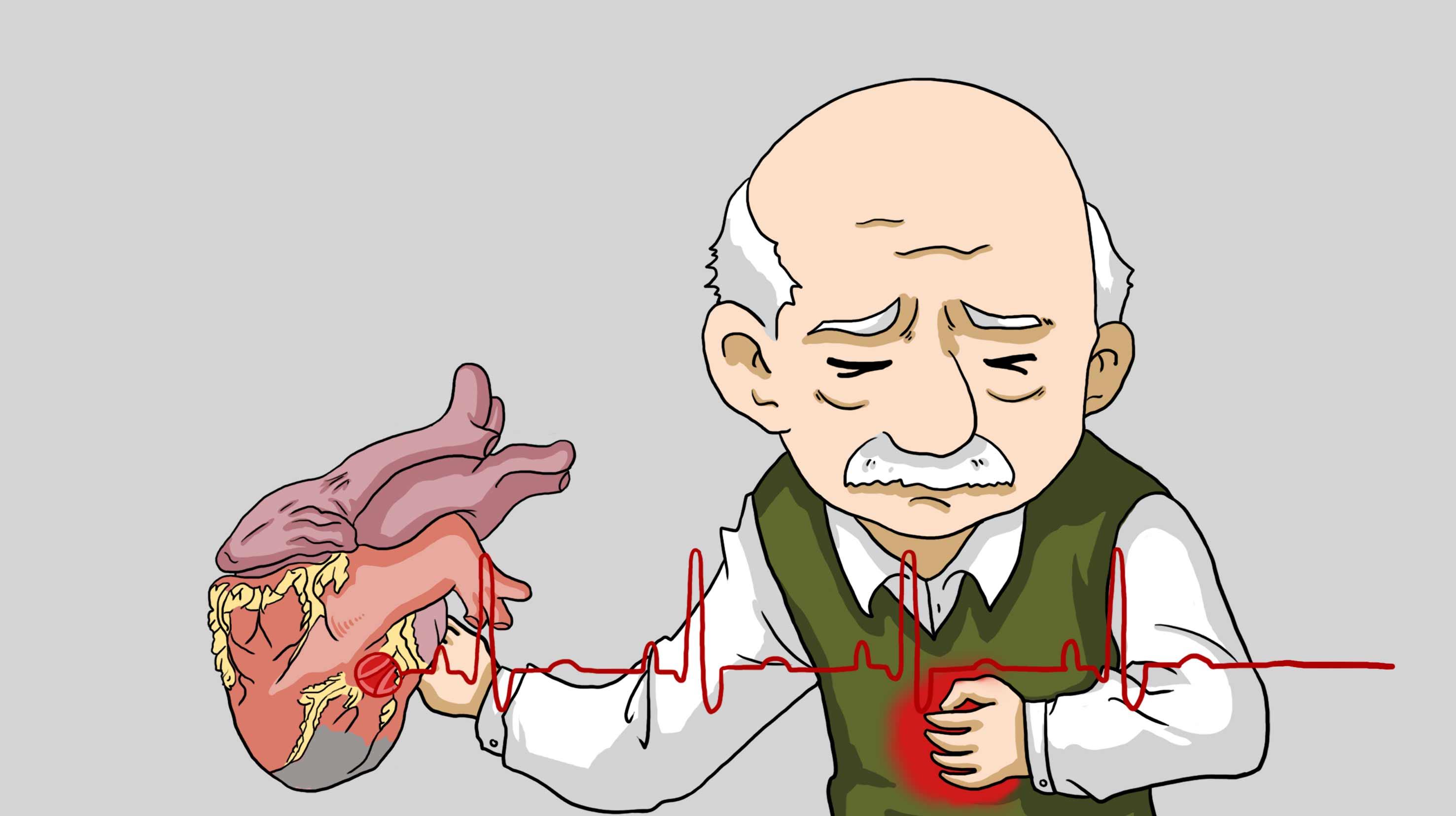 冠心病的病发原因之一——缺硒
